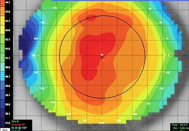 Topografia cornealecomputerizzata